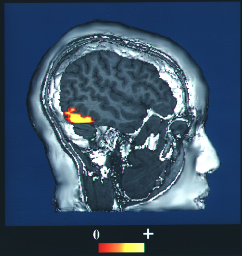 an image of a brain with a small section towards the lower back highlighted in yellow, demonstrating more blood flow when looking at images of faces